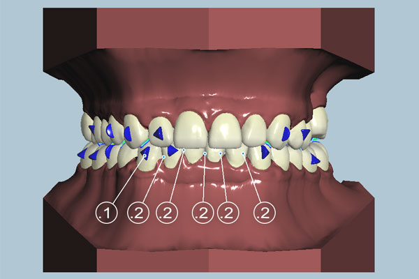 sunclear aligners design